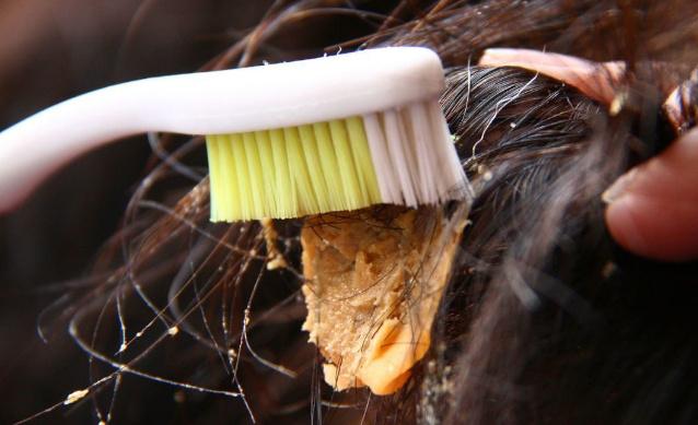 Чем можно убрать жвачку с волос