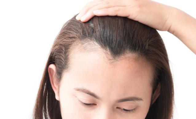 М-линия роста волос